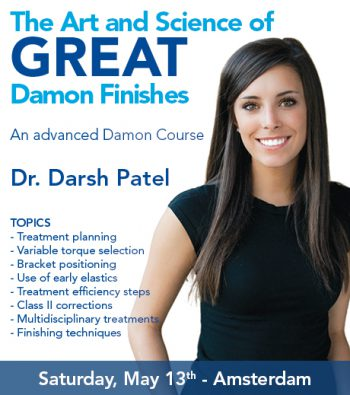 The Art and Science of Great Damon Finishes